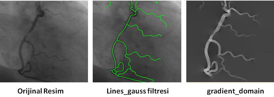lines gauss, gradient domain